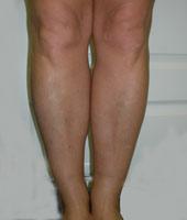 Пластика ног. Улучшение формы голеней