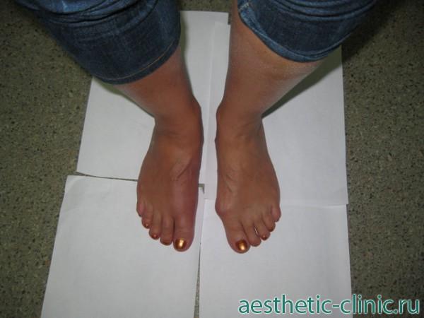 Операция по удалению косточки на ноге в спб