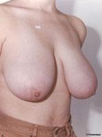 Мастопексия. Подтяжка груди