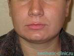 Хейлопластика — Увеличение верхней губы. До операции.