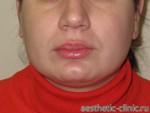 Хейлопластика — Увеличение верхней губы. После операции.