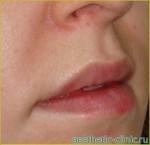 Хейлопластика — Увеличение верхней и нижней губы. После операции.