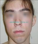 Коррекция врождённых деформаций уха. До операции.
