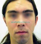 Коррекция врождённых деформаций уха. После операции.
