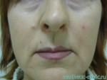Липофилинг губ — До операции