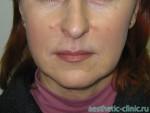 Липофилинг губ — 6 месяцев после операции