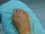 Липофилинг кистей рук — После операции