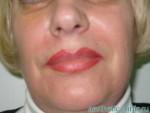 Липофилинг носогубных складок — через 1 месяц после операции