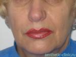 Липофилинг носогубных складок — через 1 год после операции