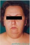 Подтяжка лица, липосакция шеи и подбородочной области. До операции, фас.