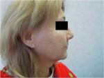 Подтяжка лица. После операции, профиль.