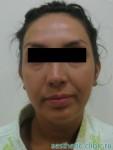 Подтяжка лица и пластика нижних век — До операции