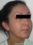 Подтяжка лица и пластика нижних век — После операции