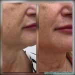 Подтяжка лица и шеи 10 нитями Aptos Visage Soft  — До и после процедуры.