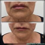 Подтяжка средней и нижней трети лица нитями Cara Cog — До и после процедуры.