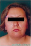 Подтяжка лица, липосакция шеи и подбородочной области. После операции, фас.