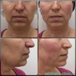 Подтяжка лица и шеи нитями Cara Cog — До и после процедуры.
