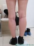 Увеличение голеней имплантами Polytech объёмом 85мл. После операции.