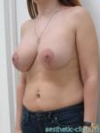 Подтяжка груди на круглых имплантатах Natrelle Inspira TSLP N-TSLP 250. После операции.