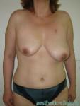 Увеличение груди с мастопексией при асимметрии. До операции.