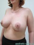 Увеличение груди с мастопексией при асимметрии. После операции.