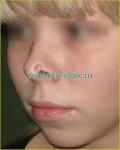 Восстановление формы носа после травмы. До операции.