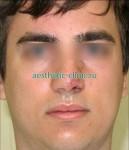 Восстановление формы носа после травмы. После операции.