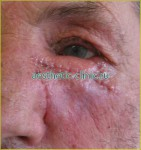 Восстановление формы век после травм. После операции.