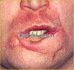 Восстановление формы губ после травмы. До операции.