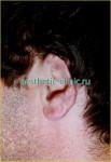 Восстановление уха после травм. До операции.