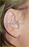 Восстановление уха после травм. После операции.