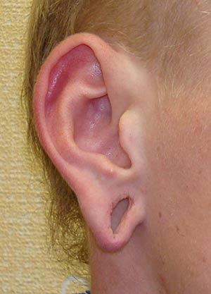 Отопластика. Восстановление мочки уха