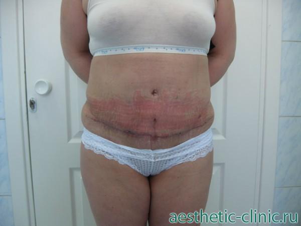 Опухший живот после полостной операции