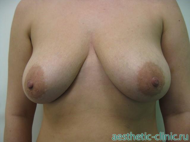 Маммопластика после удаления груди