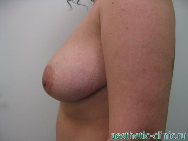 Плоские соски маленькой груди