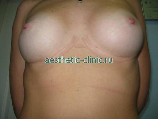 швы после увеличения грудины