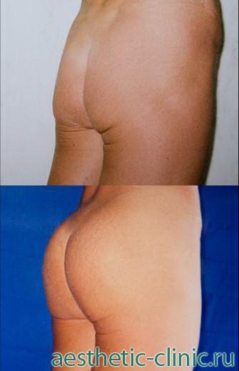 Увеличение ягодиц имплантами. До и после операции.