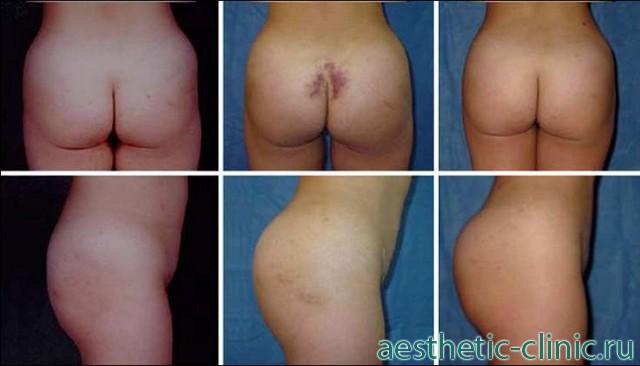 Увеличение ягодиц собственным жиром. До операции, через 3 дня и через 3 месяца после операции.