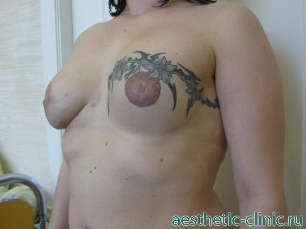 Как мужчина относится к силиконовой груди