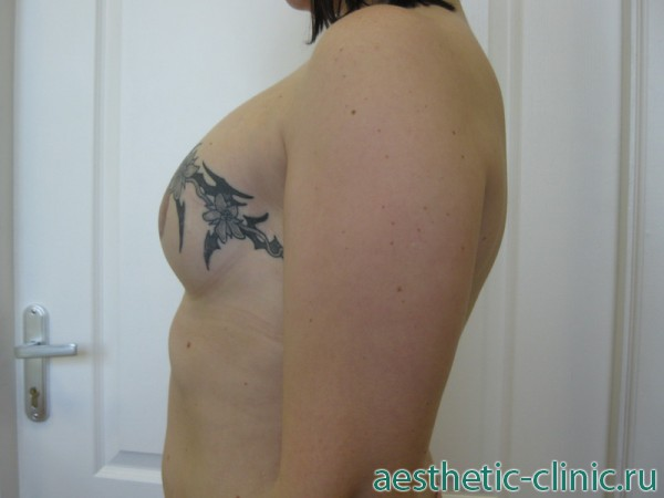 Пластическая операция жертва грудь